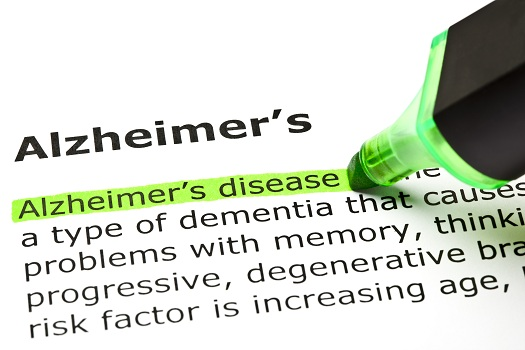 The Truth Behind Common Alzheimer's Misconceptions in Addison, TX